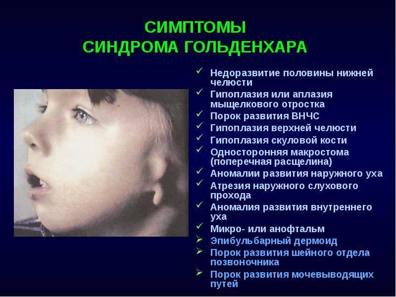 Лечение недоразвития нижней челюсти у ребенка