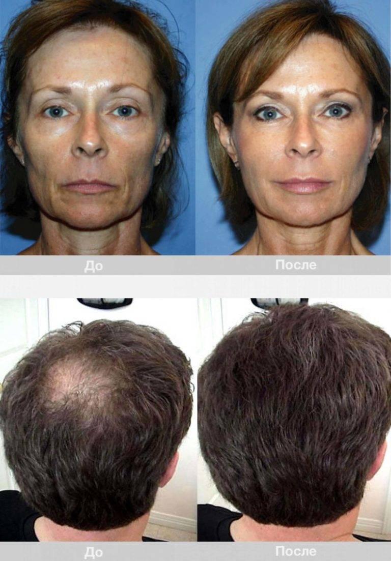 Плазмолифтинг волос: эффективный и безопасный способ их оздоровления