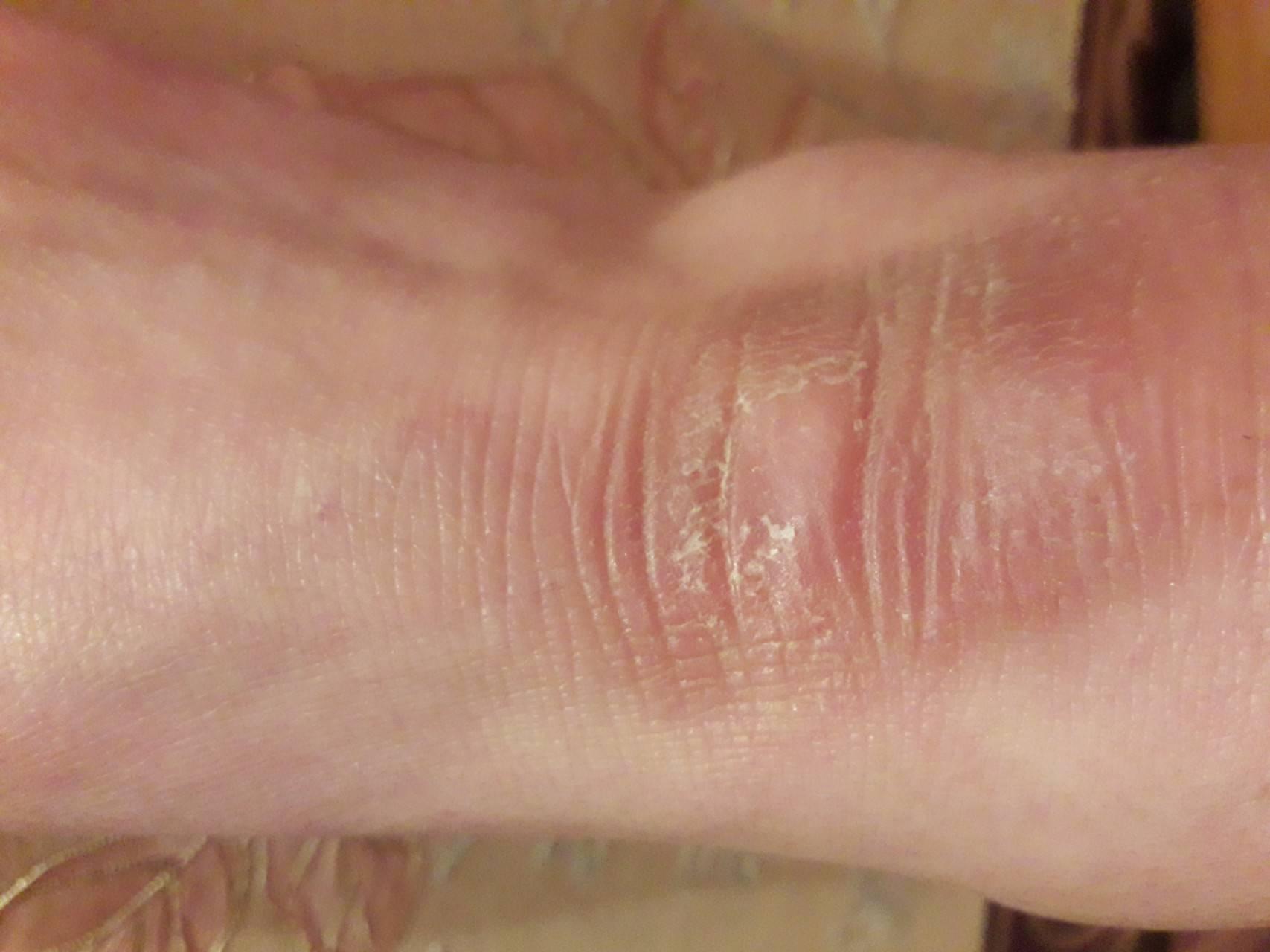 Шелушатся стопы ног лечение народными средствами