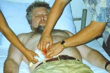 «филиппинские хилеры хилеры (англ. heal - исцелять) - целители, на филиппинах, обладающие способностью проводить операции без использования хирургических инструментов. операции проходят ...»