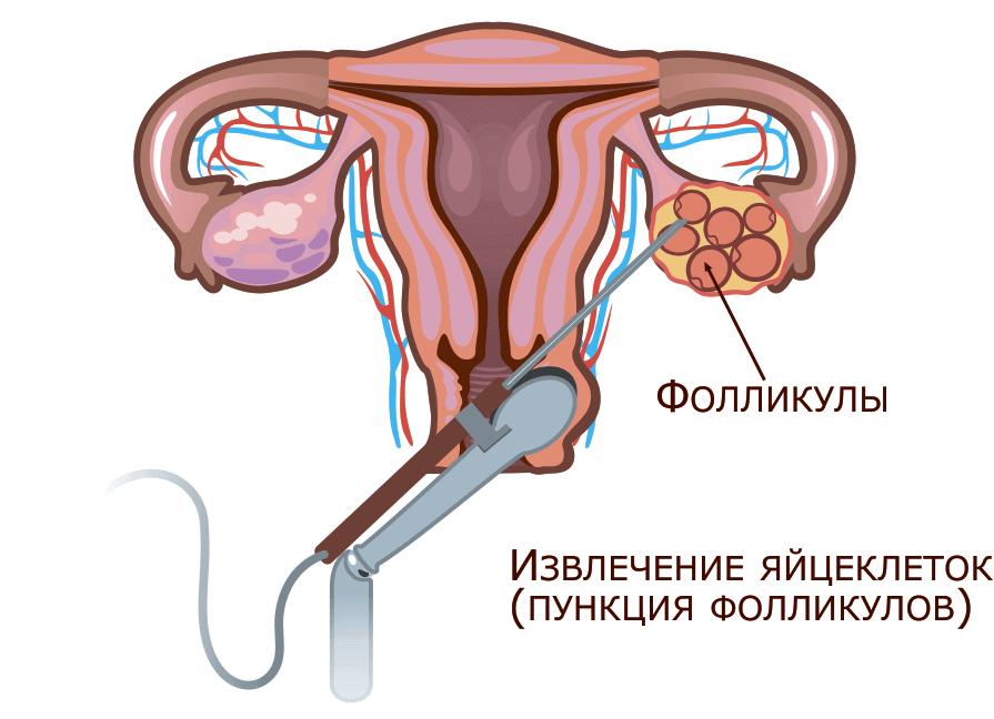 Как делают прокол кисты яичника