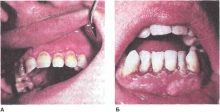 Язвенно-некротический гингивостоматит венсана (gingivitis et stomatitis ulcero-necroticans vincenti)