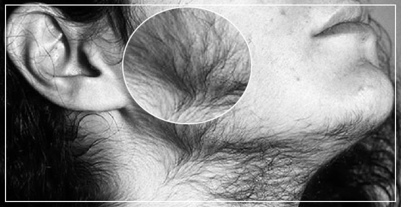 Диагностика и лечение гипертрихоза у мужчин и женщин