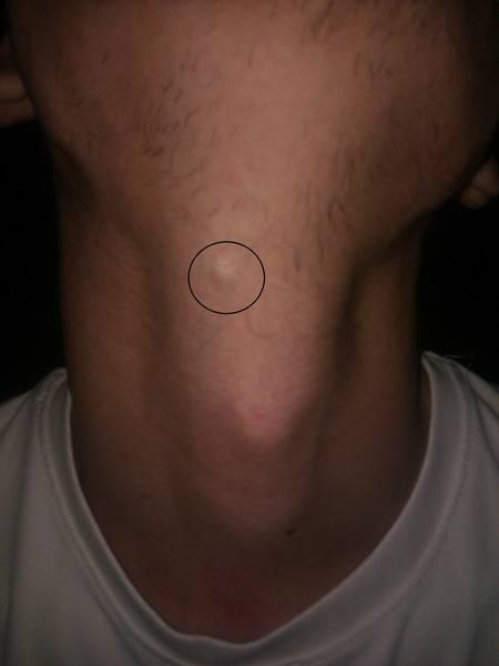 На подбородке под кожей появилась шишка и болит: что это такое?