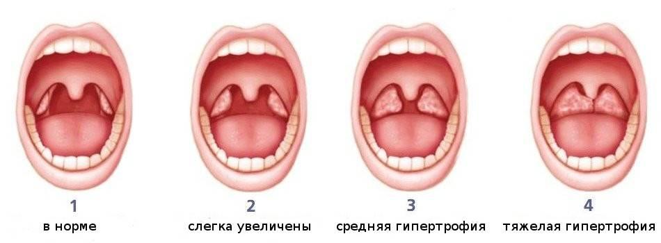Гланды и миндалины в горле: как выглядят здоровые, где находятся, лечение воспаления