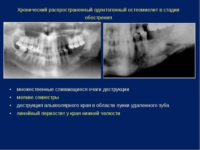 Остеомиелит верхней челюсти симптомы