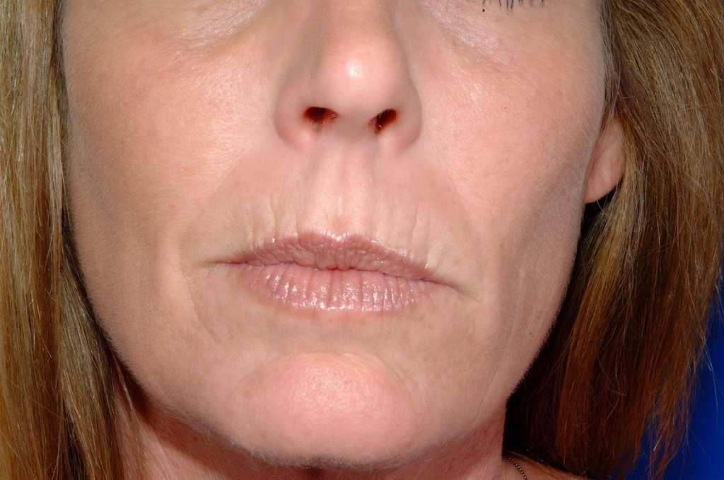 Как быстро и эффективно убрать морщины над верхней губой