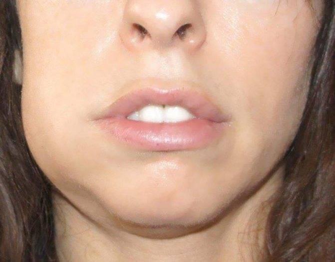 Причины появления флюса после удаления зуба