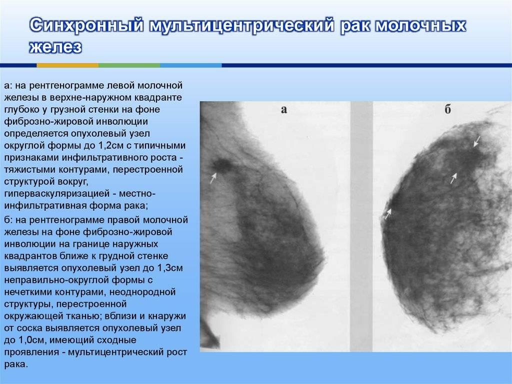 Опасность узлового образования молочной железы, признаки и симптомы