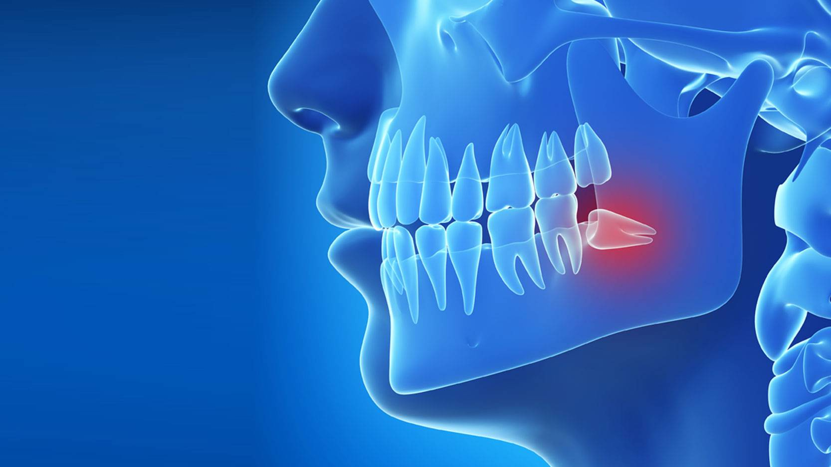 Зуб мудрости растет в щеку: фото, нужно ли удалять, если он мешает и натирает