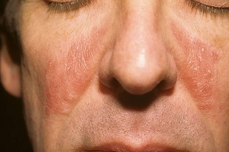 Себорейный дерматит: от диагностики к лечению
