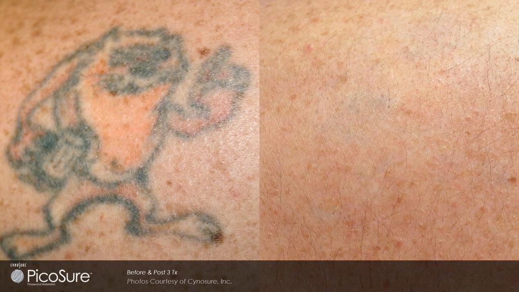 Остается ли шрам после удаления татуировки лазером?