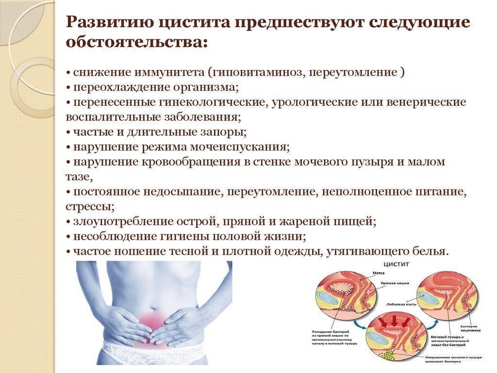 Цистит у ребенка – признаки, лечение препаратами и народными средствами