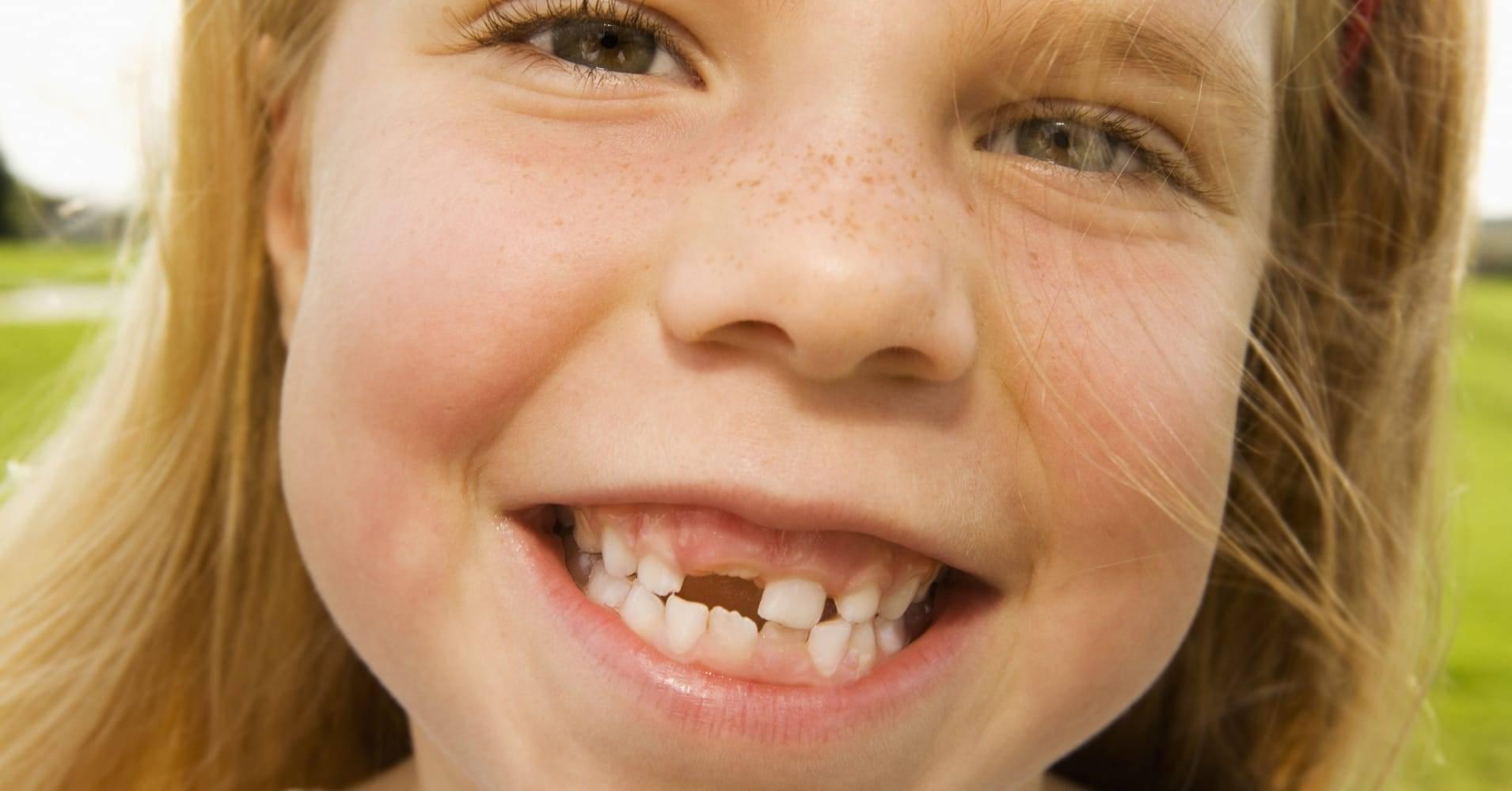 Постоянный зуб растет за молочным — что делать?