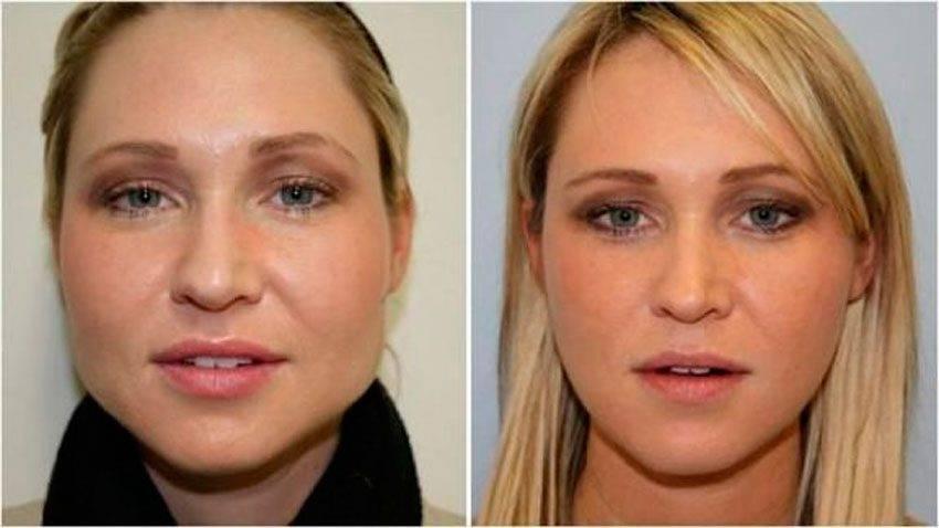 Как избавиться от жира на лице? 3 лучших способа похудеть в лице