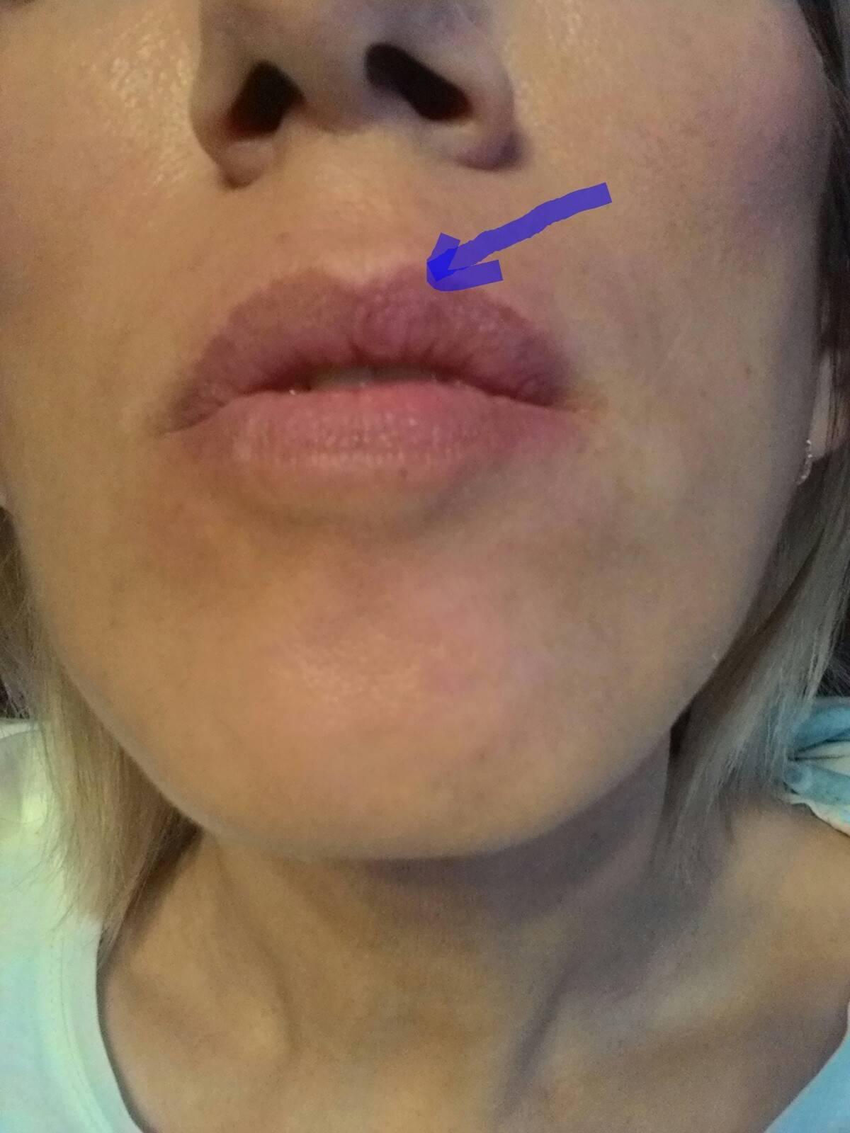 Причины появления пигментных пятен на губах и методы избавления: обзор домашних и салонных методов