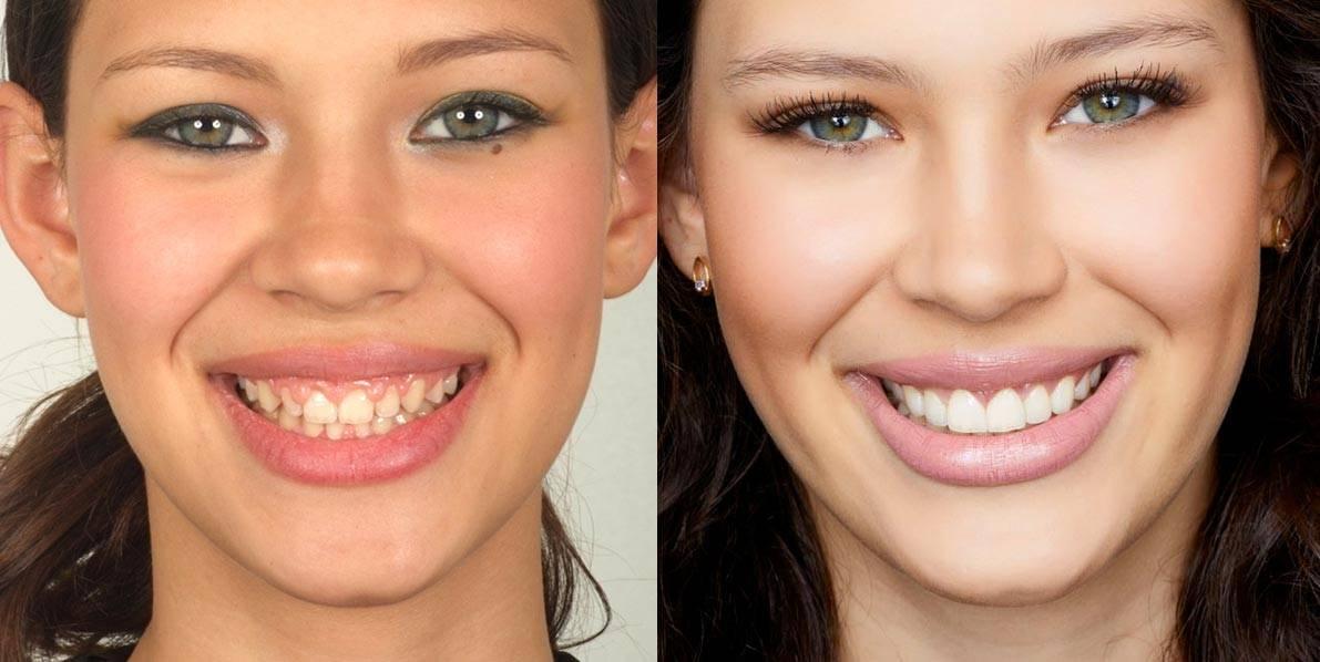 Звезды с винирами на зубах: фото до и после
