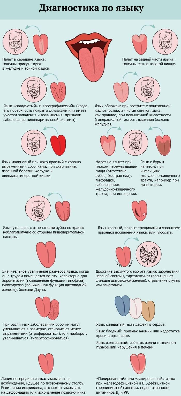 Как проводится диагностика заболеваний по языку?