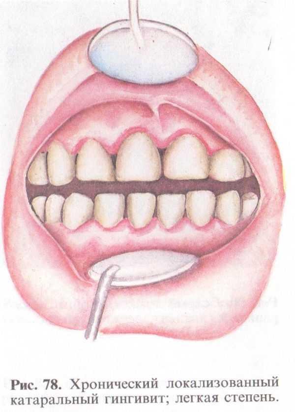 Хронический катаральный гингивит
