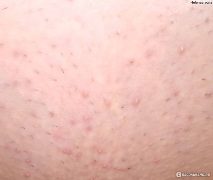 Методы избавления от раздражения после бритья в интимной зоне