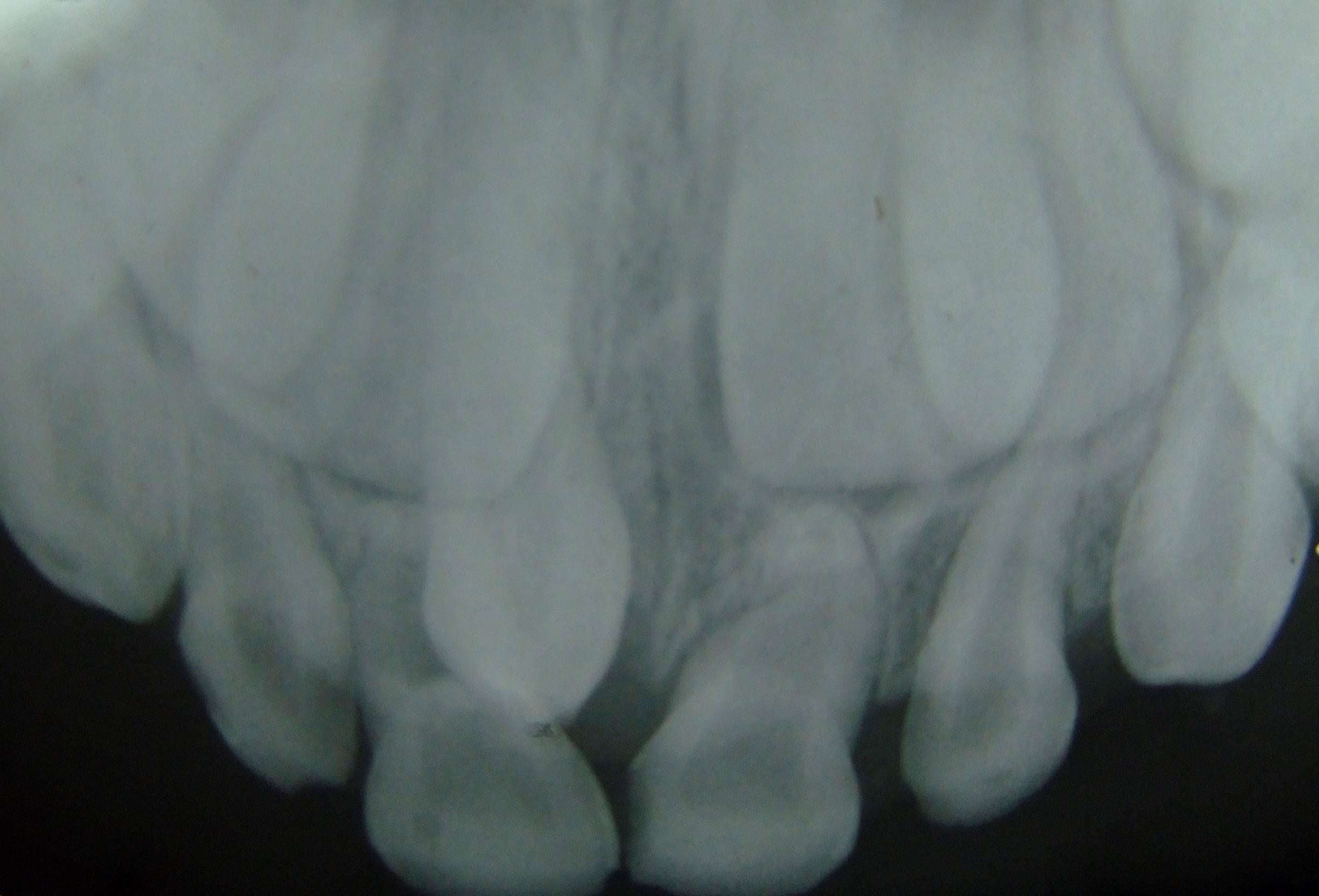 Гипердонтия (полиодонтия) у человека: что такое сверхкомплектные зубы?