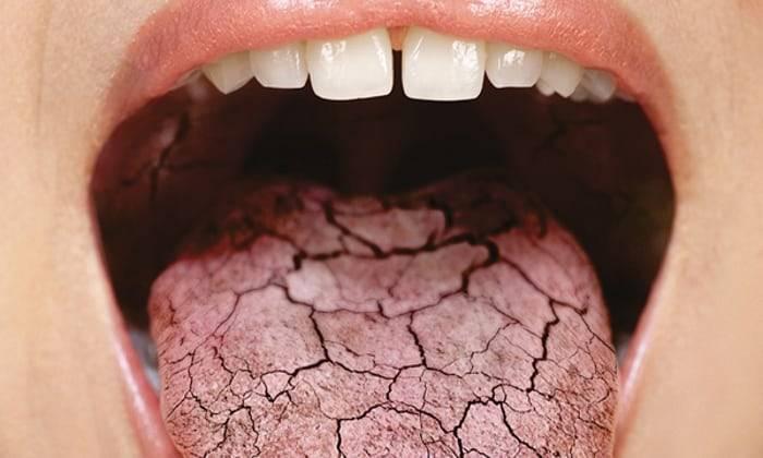 Боль на кончике языка: причины, лечение и профилактика