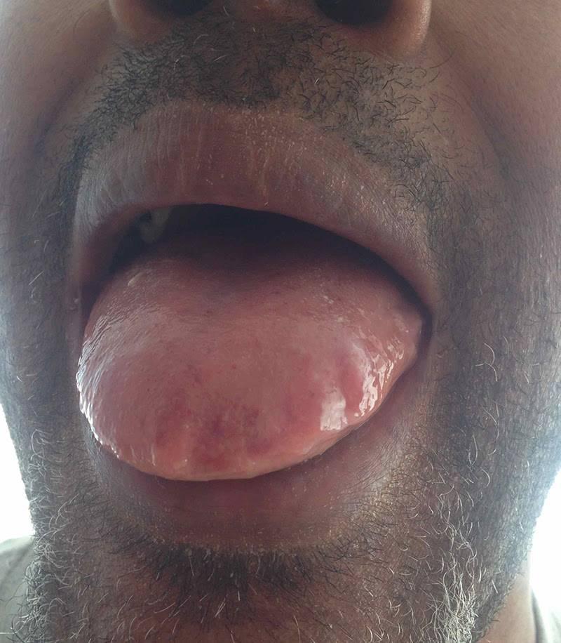 Отечность языка с отпечатками зубов по краям