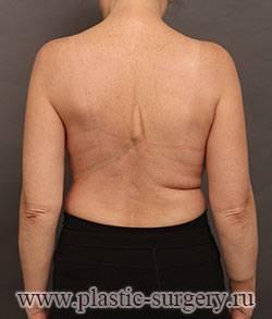 Первый этап операции пореконструкции молочной железы после мастэктомии