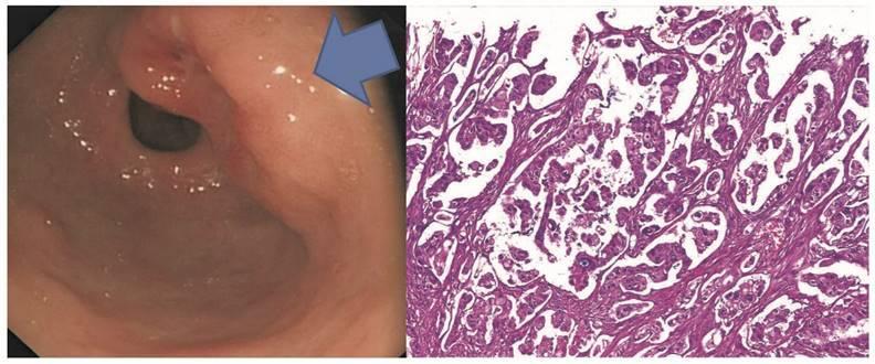 Метастазы при раке яичников