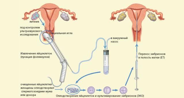 Когда нужна и как проводится полостная операция по удалению кисты яичника