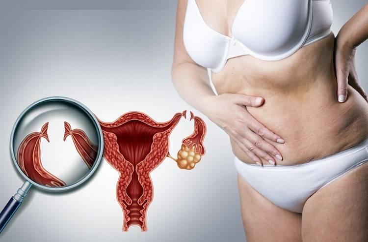 Скопление жидкости в малом тазу у женщины: причины и последствия