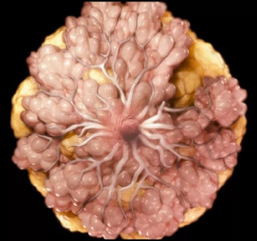 Рак яичников — стадии, диагностика, причины, лечение
