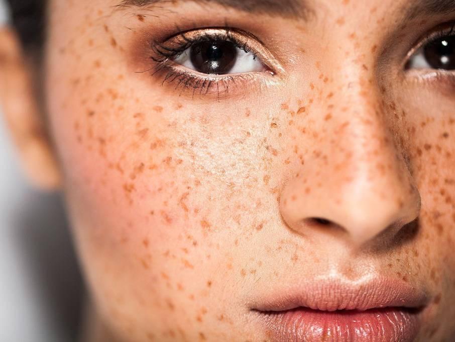 Хлоазма на лице: причины появления и методы лечения