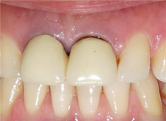 Как убрать щель между зубами?