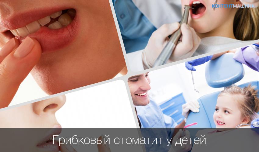 Лечение всех форм стоматита у детей: препараты и народные рецепты