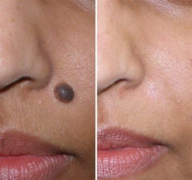Уход за кожей после удаления папилломы жидким азотом