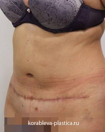 Что такое миниабдоминопластика и как проводят эту операцию на животе? фото до и после процедуры
