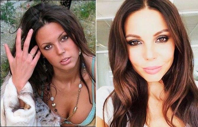 Личная жизнь оксаны самойловой: до и после пластической операции