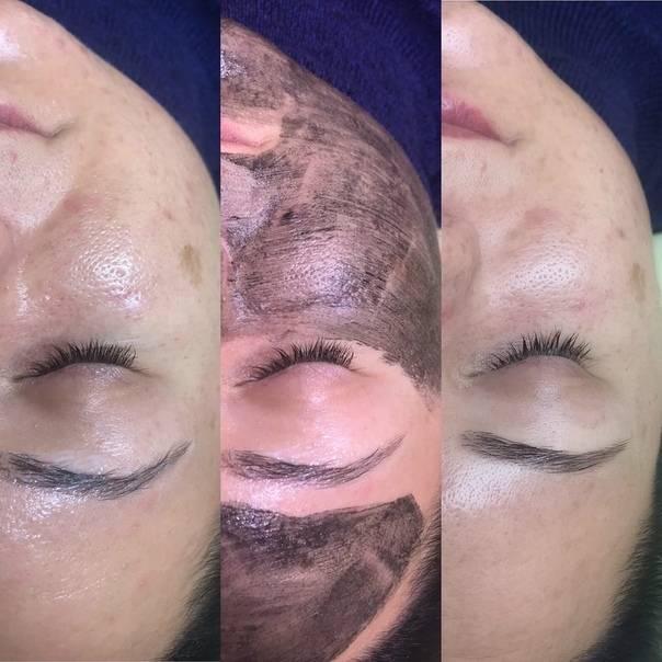 Карбоновый пилинг – эффективен, особенно, для жирной кожи (2019)