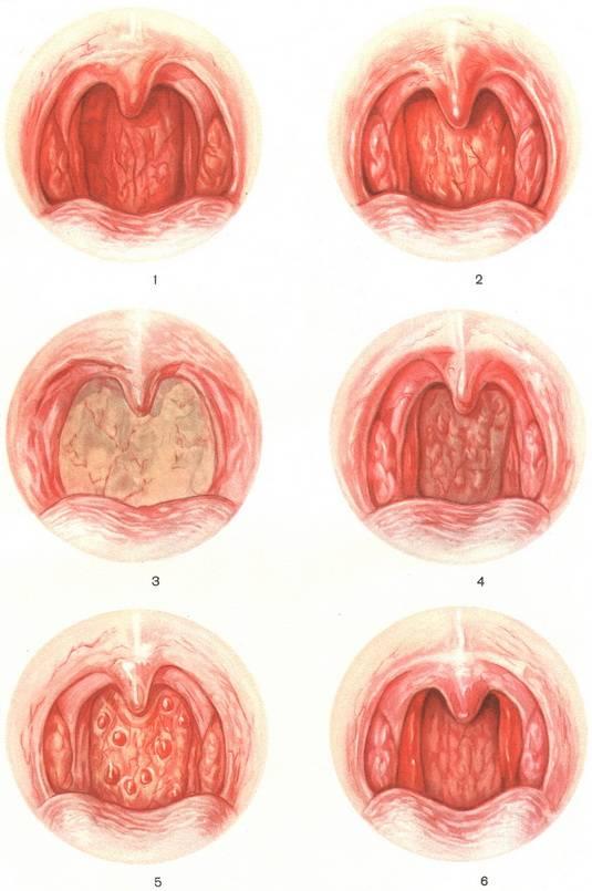 Причины появления гноя в горле и методы лечения