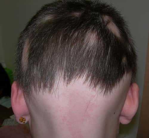 Стригущий лишай у человека фото начальная стадия