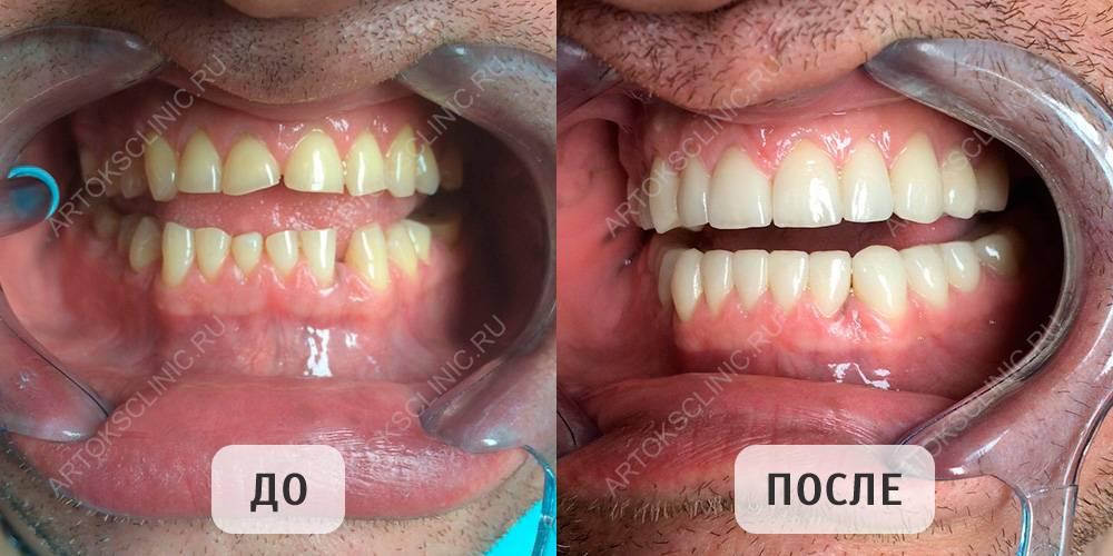 Что такое люминиры? это голливудская улыбка без вреда для ваших зубов