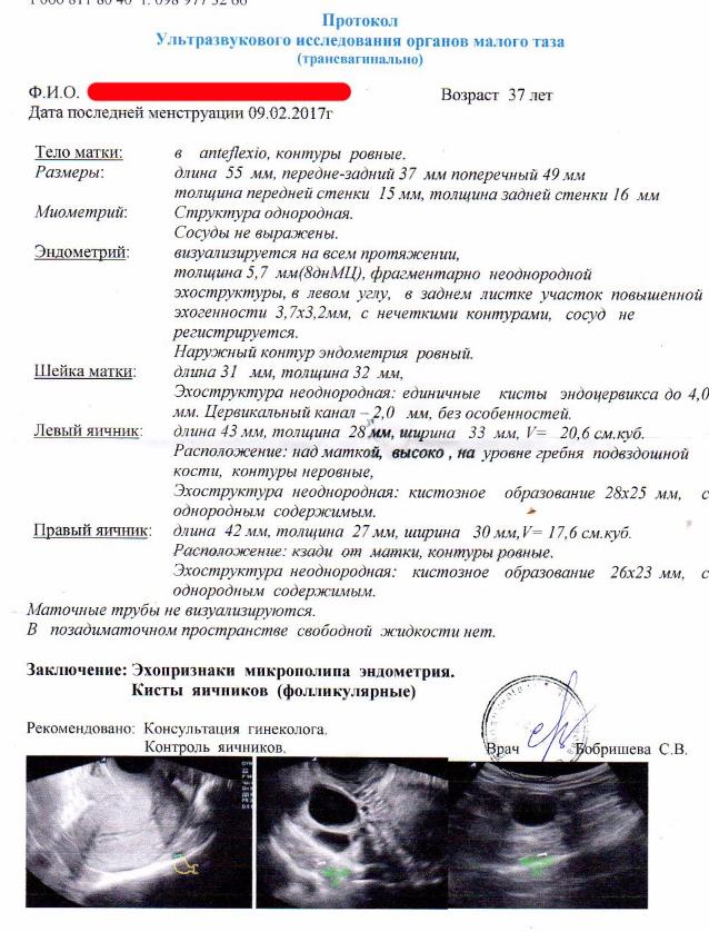 Нормы эндометрия по дням цикла
