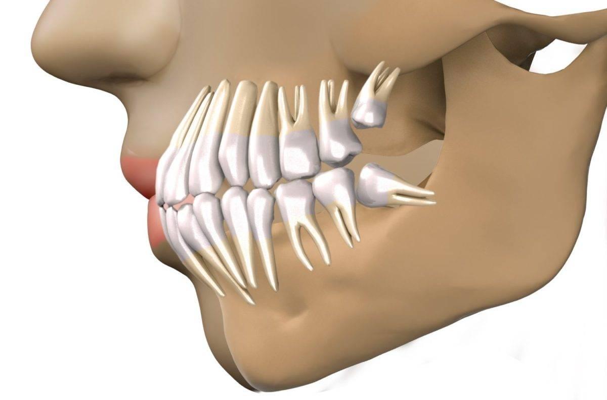 Причины отека после удаления зуба мудрости, как справиться с опухолью