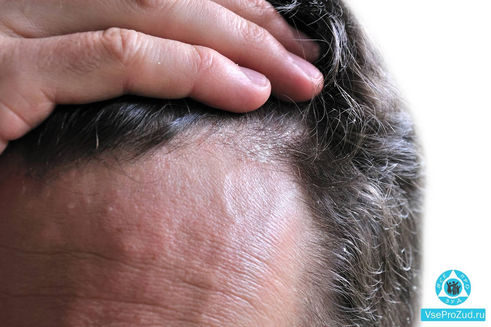 Лечение зуда головы