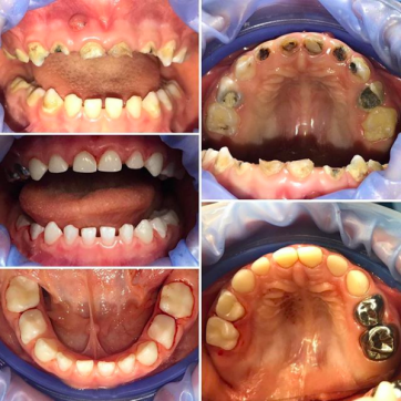 Может ли гнилой зуб давать температуру
