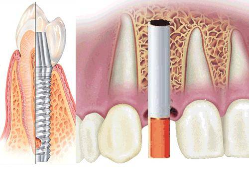 Можно ли курить, когда тебе вырвали зуб
