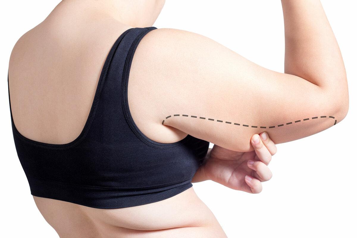 Как убрать на руках обвисшую кожу: 14 реальных рецептов и упражнений