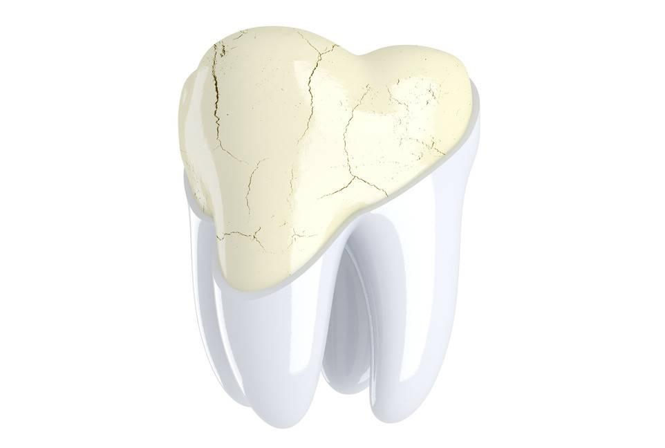 Что делать, если откололся небольшой кусочек зуба?