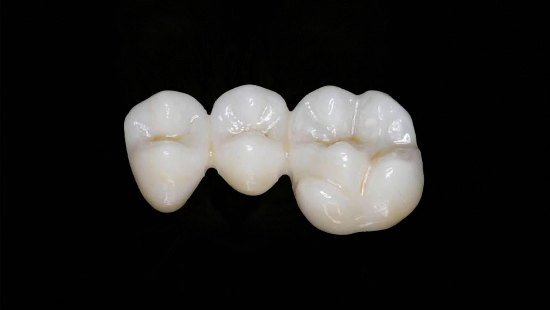Зубной цемент для коронки: использование вещества дома, плюсы и недостатки